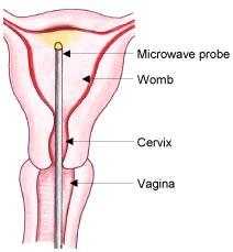 A microwave probe in the womb